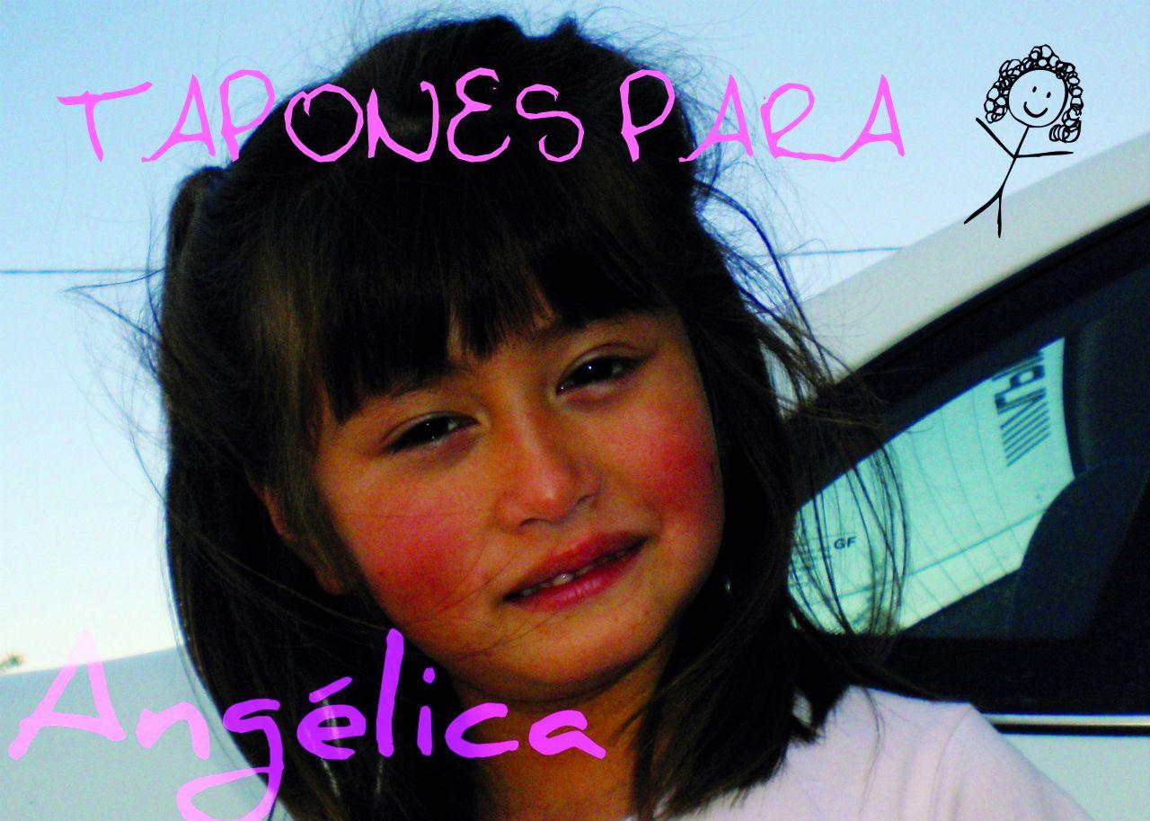 Tapones para Angélica